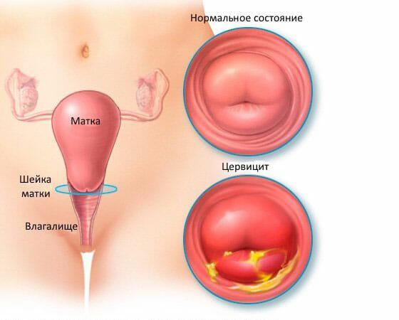 нормальная шейка матки и воспаление