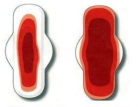 Кровяные выделения на прокладке
