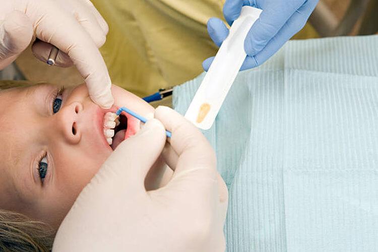 Обработка зубов ребенка
