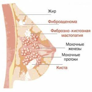 Образования при мастопатии
