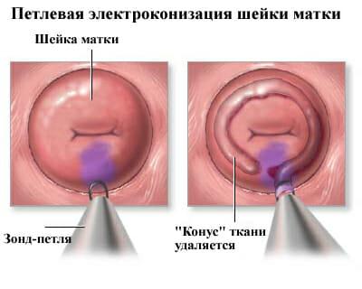 Петлевая операция