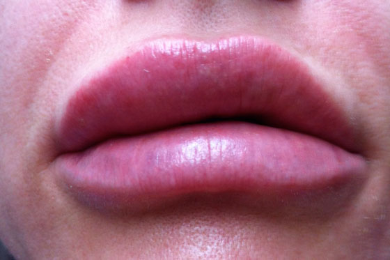 Опухли губы