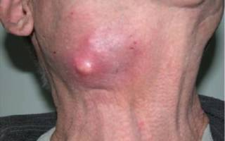 Запущенная стадия воспаления подчелюстных лимфоузлов