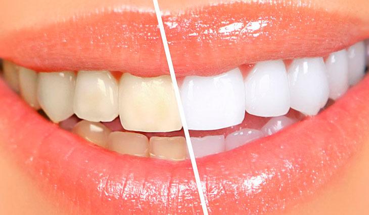отбелить зубы без вреда для эмали