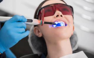 Лазерное лечение зубов всё, что нужно знать о процедуре в 2020 году