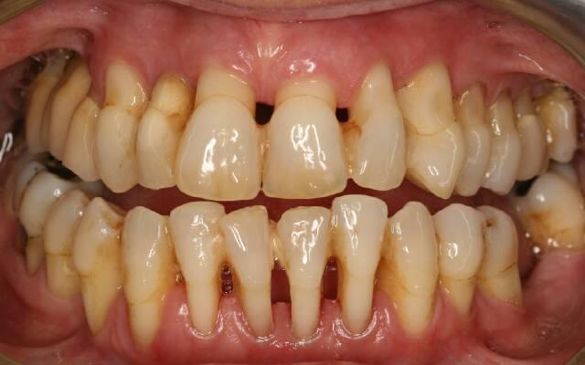 Пародонтоз и зубной камень