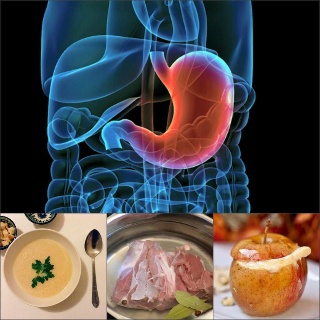 питание при язве желудка в период обострения