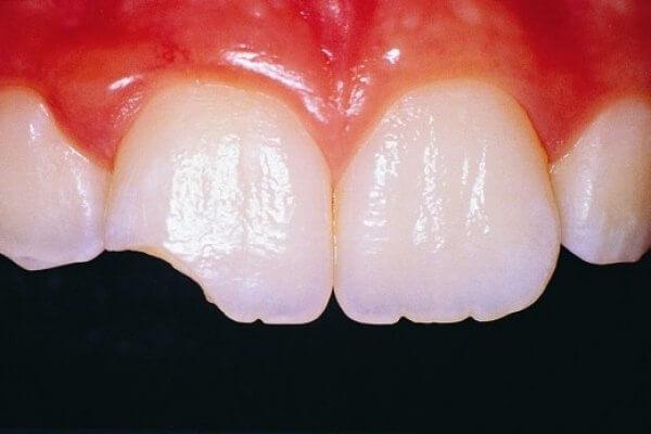 Отколотые передние зубы