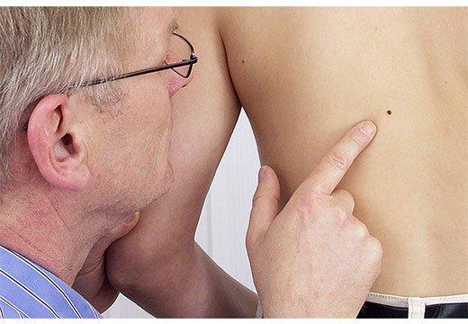 диагностика родинки на спине