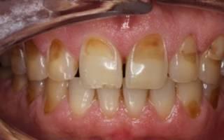 Почерневшие зубы