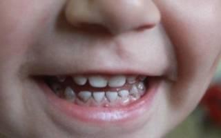 Черные полосы на зубах