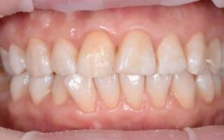 Потемневшие зубы