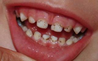 Налет Пристли на зубах