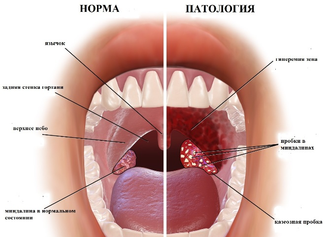 Пример нормальных гланд и с патологией