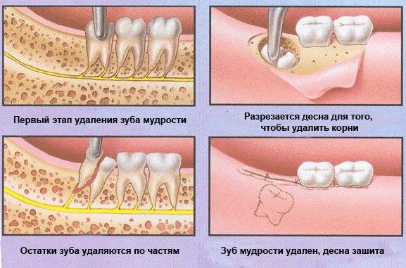 Удаление зубы мудрости