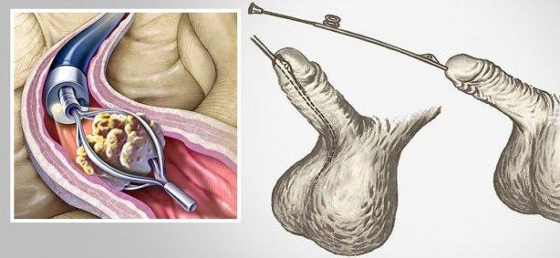 стент в уретре мужчины