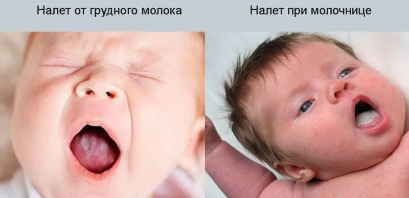 Налет от грудного молока и при молочнице