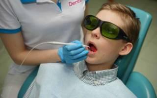 Лазерное лечение зубов ребенка