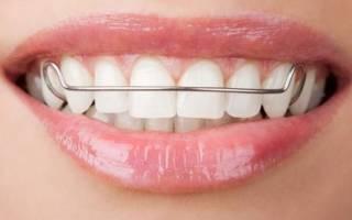 Пластина для выравнивания зубов