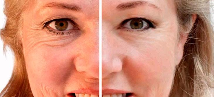 рецепты компрессов и масок от морщин вокруг глаз