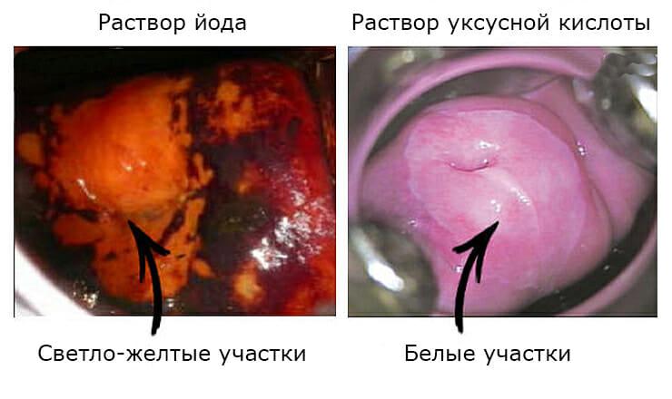 Шейка матки при уксусной кислоте и йоде