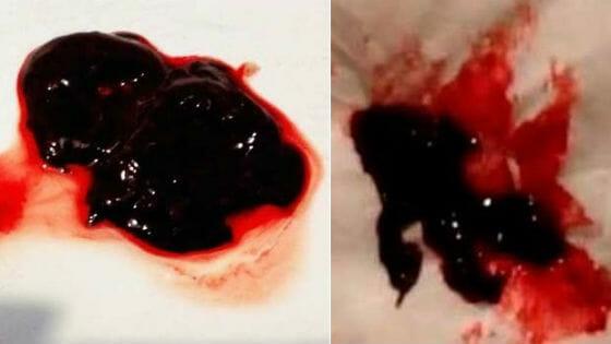 Сгустки крови при месячных фото
