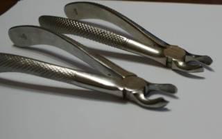 Щипцы для удаления зубов