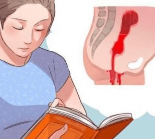 Читает про сильное кровотечение