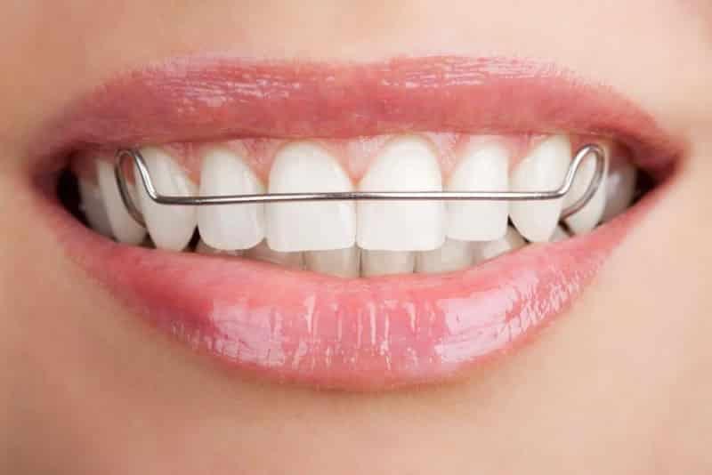 Скобы для зубов
