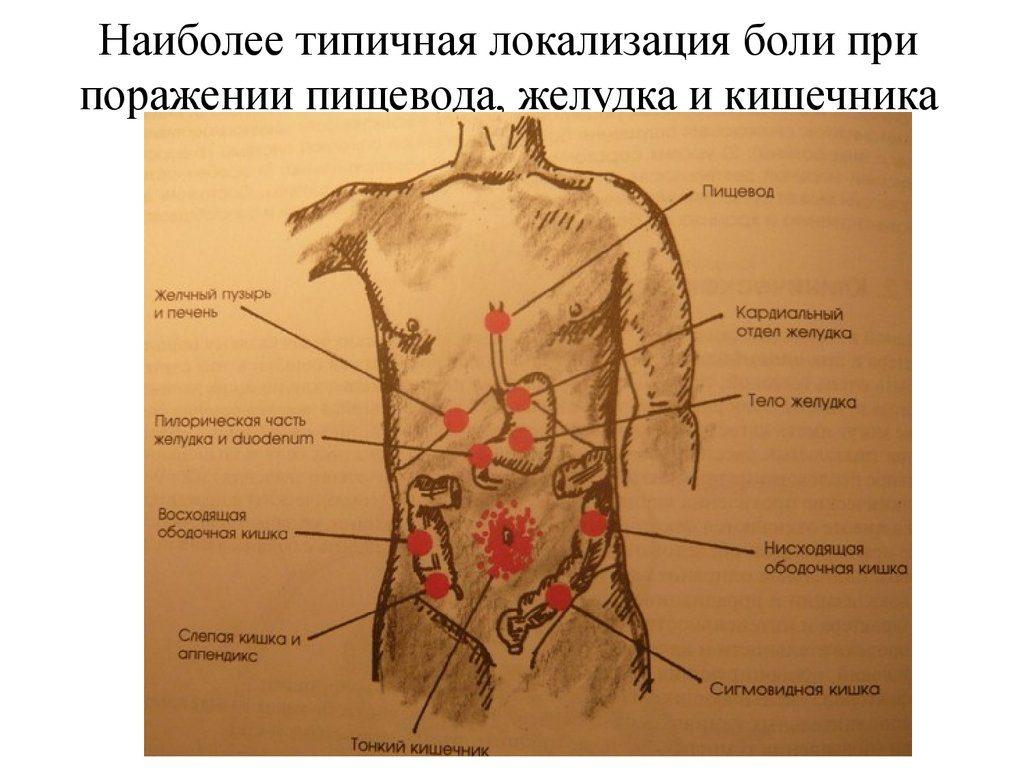 признаки гастрита симптомы где болит
