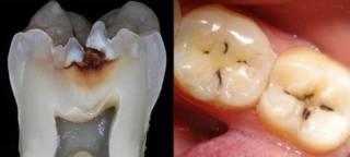 Незагерметизированный вовремя зуб