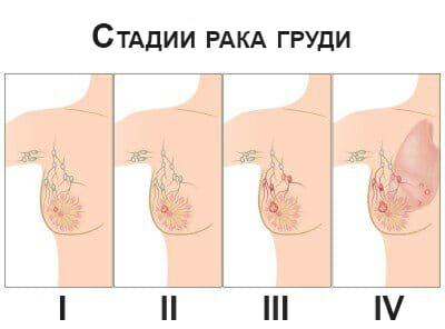 Фото стадий рака матки