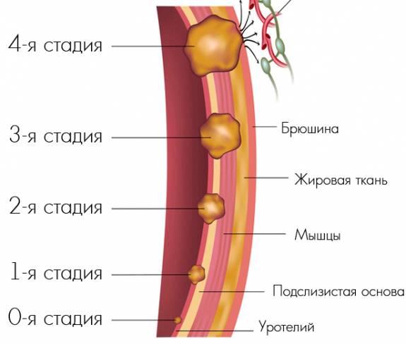 Лечение и прогноз опухоли мочевого пузыря