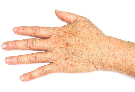 старческие пятна на руке