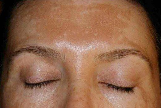 возрастная пигментация на лице