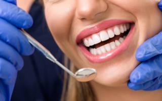 Установка всех зубов