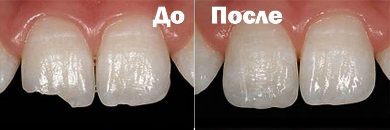 Наращивание зубов пломбой