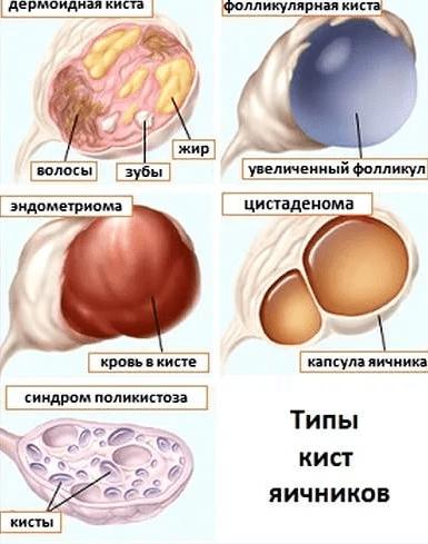 Типы кист яичника