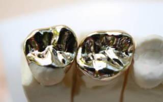 Титановые коронки