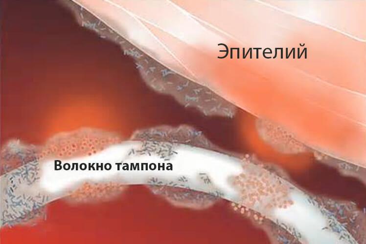Эпителий и волокно тампона
