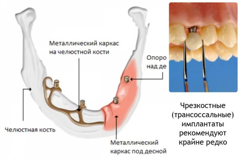 Трансоссальный имплантат