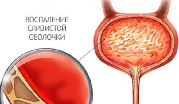 воспаление слизистой мочевины