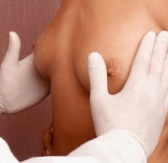 Врач осматривает грудь