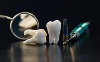 Удаленные зубы и инструменты