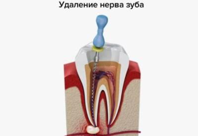 Зачем удалять зубной нерв