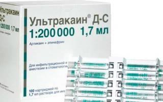Препарат Ультракаин