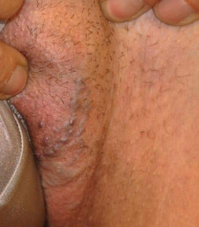Варикоз половых губ