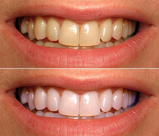 Отбеливание зубов карандашом