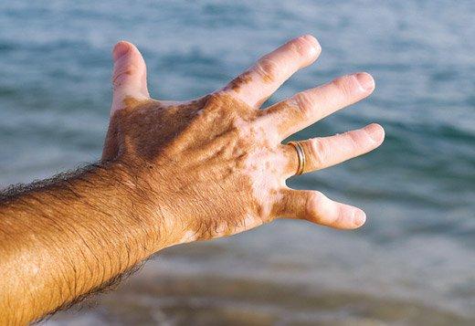руки с витилиго