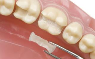 Реставрация зуба вкладкой